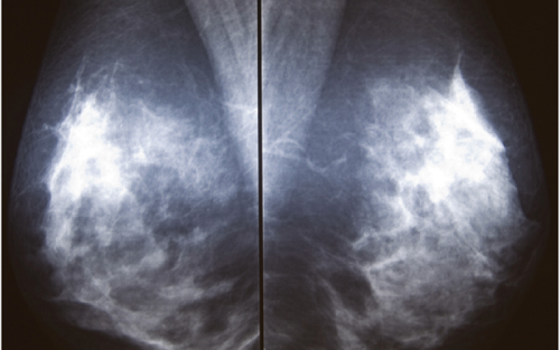 Clues about contralateral breast cancer