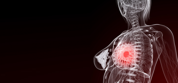 Gene causes breast cancer spread