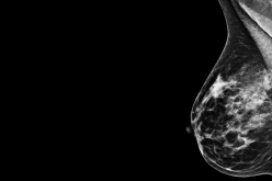Protein may be largely responsible for metastasis of breast cancer