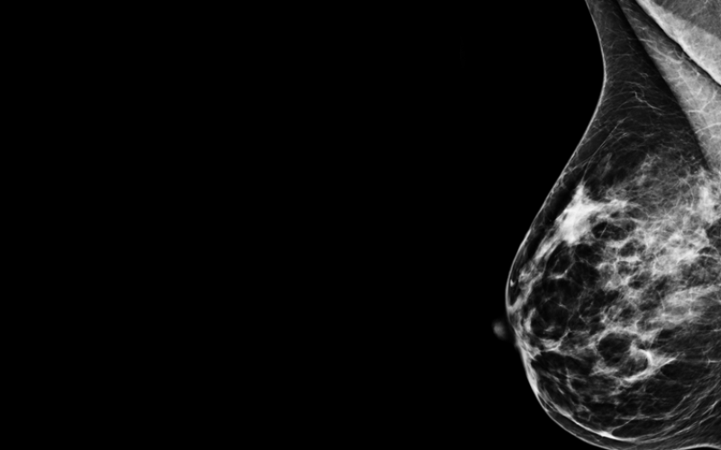 The dangers of NOT having breast cancer