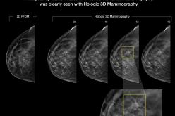 3D Mammography Improves Cancer Detection in Dense Breasts