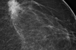 Risk-based Screening Misses Breast Cancers In Over 40's