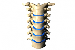 ASCOT: New cervical plate system with screw locking mechanism