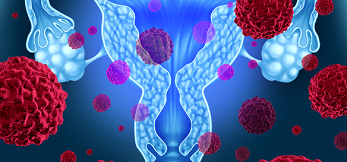 New research uncovers important molecule in ovarian cancer