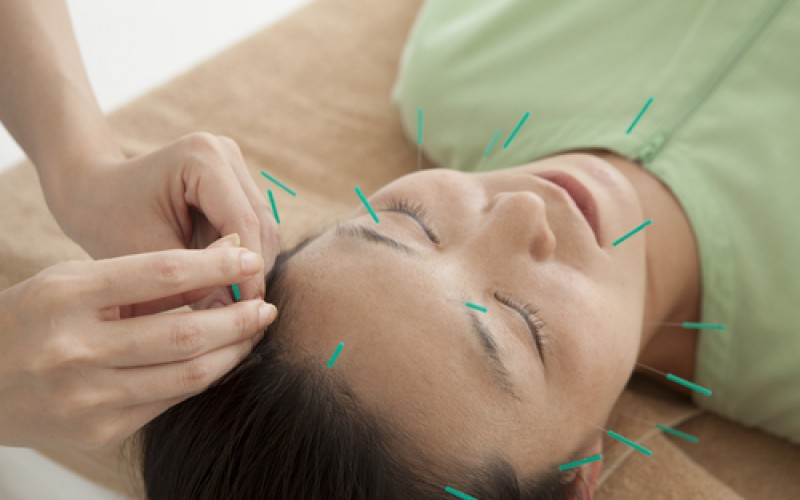 Real acupuncture no better than sham acupuncture for treating hot flushes
