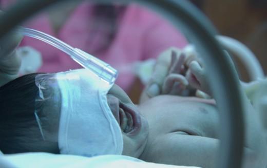 Explaining bursts of activity in brains of preterm babies