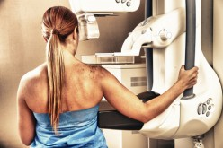 Mammograms: Another way to screen for heart disease?