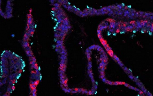 Organoids could provide new insights into the early stages of pregnancy