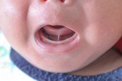 Study questions if tongue-tie surgery for breastfeeding is always needed