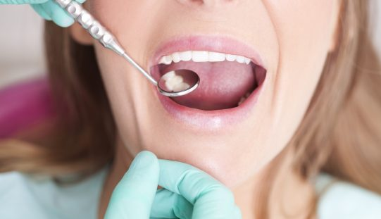 How nurses and midwives can help women who are trying to conceive have better dental health